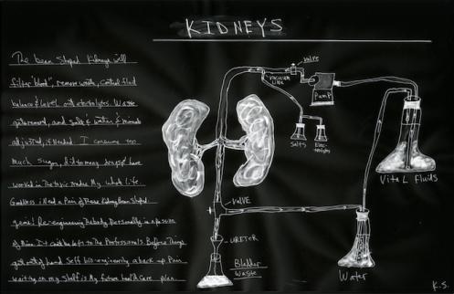 Kidney_small_neg 2